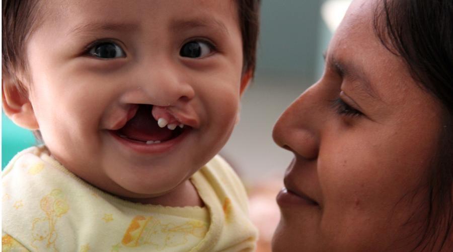 Resultado de imagen para labio paladar hendido niños