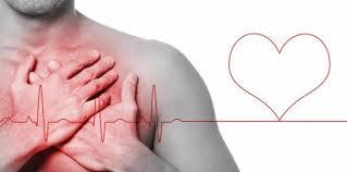 Una arritmia del corazón eleva riesgo de sufrir accidente cerebrovascular